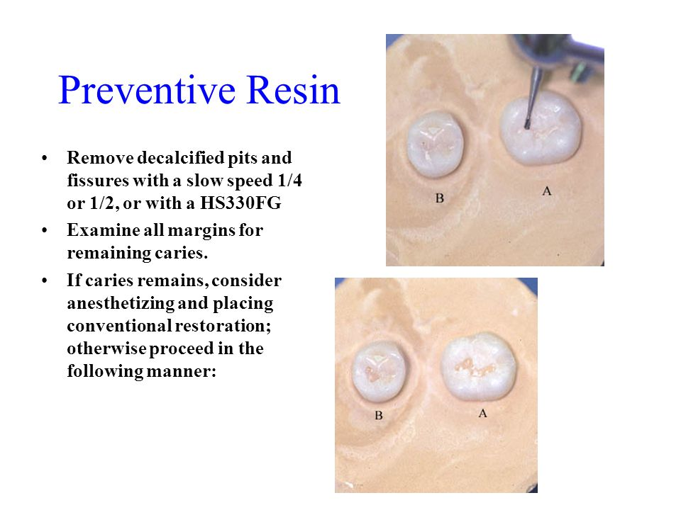 Preventive Resin Remove decalcified pits and fissures with a slow speed 1/4 or 1/2, or with a HS330FG Examine all margins for remaining caries. If car