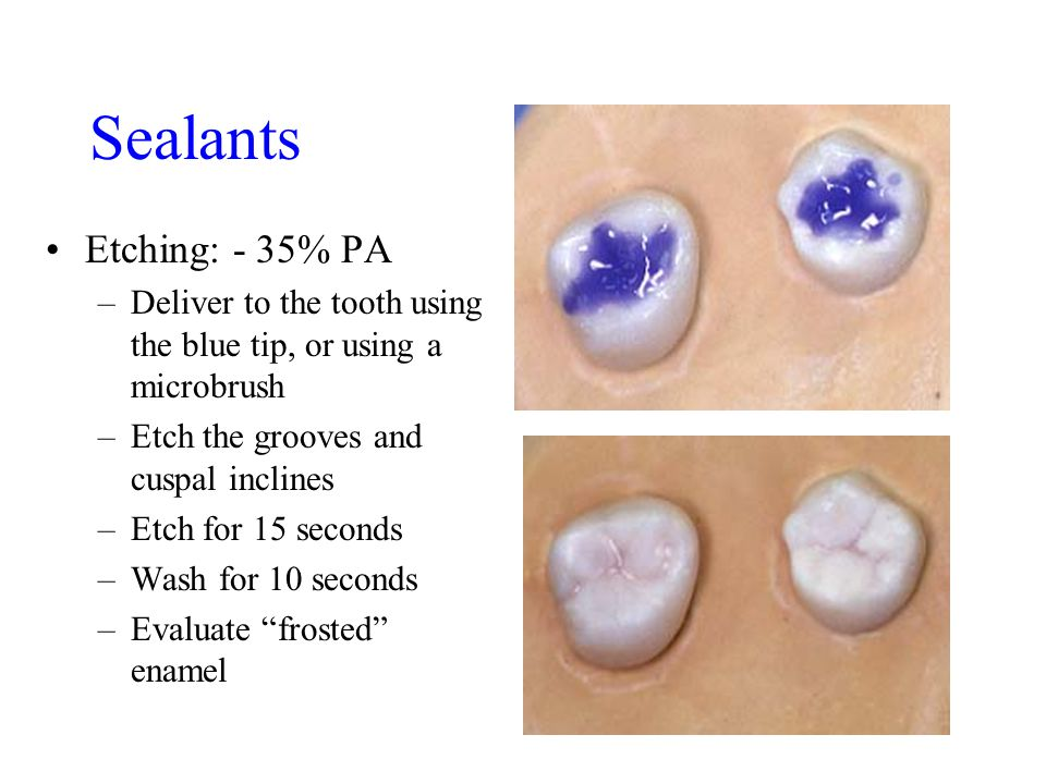 Sealants Etching: - 35% PA –Deliver to the tooth using the blue tip, or using a microbrush –Etch the grooves and cuspal inclines –Etch for 15 seconds