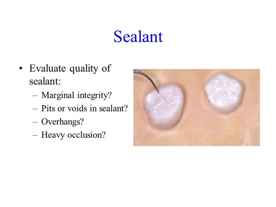 Sealant Evaluate quality of sealant: –Marginal integrity? –Pits or voids in sealant? –Overhangs? –Heavy occlusion?