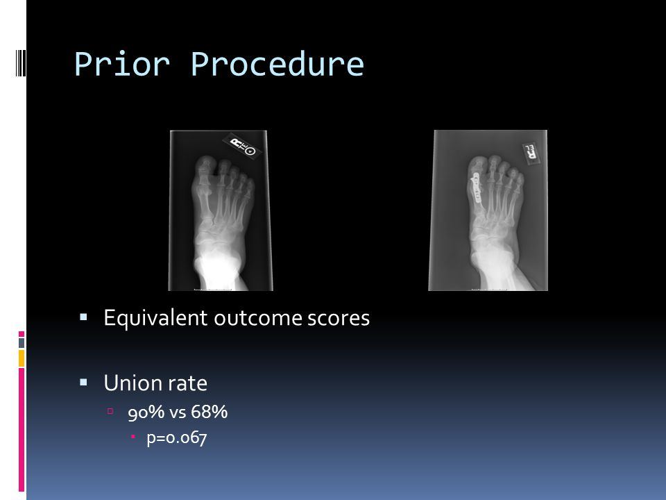 Prior Procedure Equivalent outcome scores Union rate 90% vs 68% p=0.067