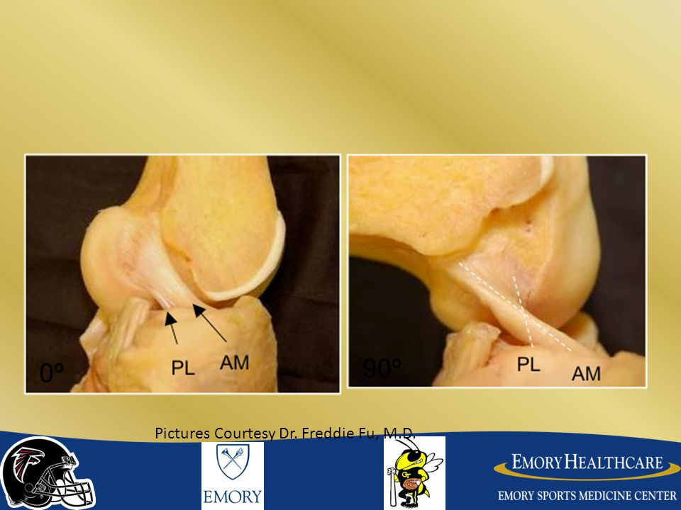 Femoral Tunnel Able to drill an anatomic femoral tunnel by adding an accessory medial portal or placing medial portal more medial than normal