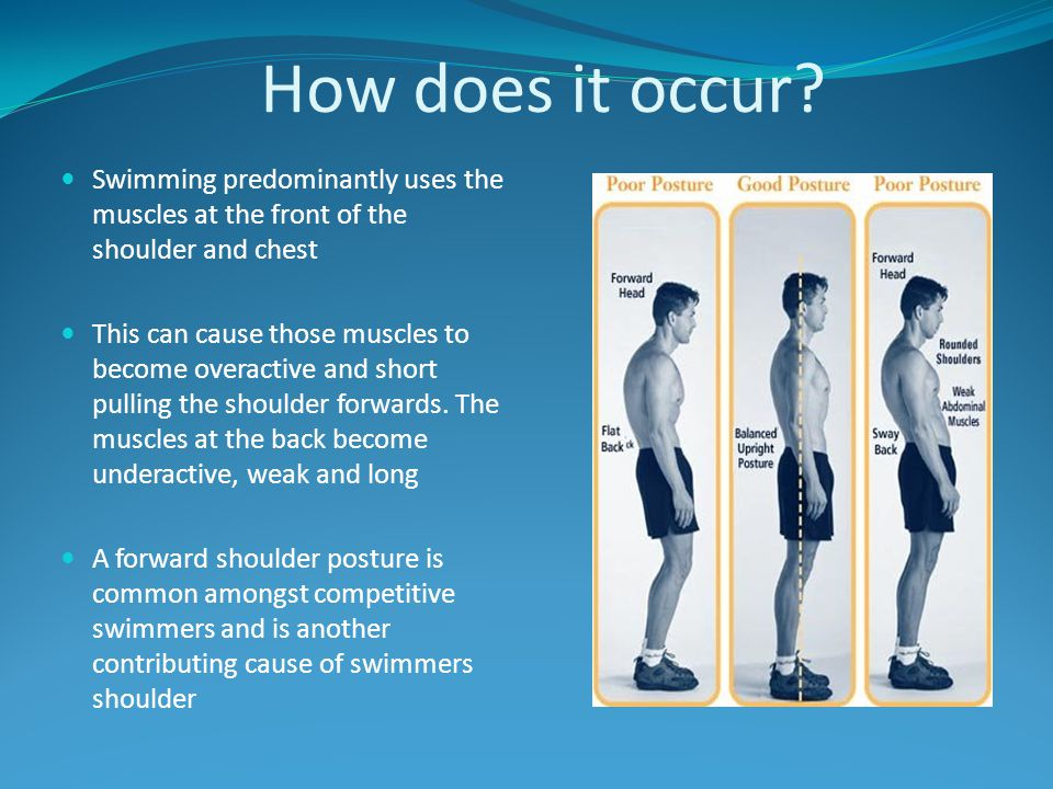 How does it occur? Swimming predominantly uses the muscles at the front of the shoulder and chest This can cause those muscles to become overactive an