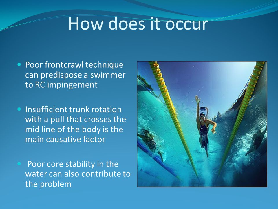 How does it occur Poor frontcrawl technique can predispose a swimmer to RC impingement Insufficient trunk rotation with a pull that crosses the mid li