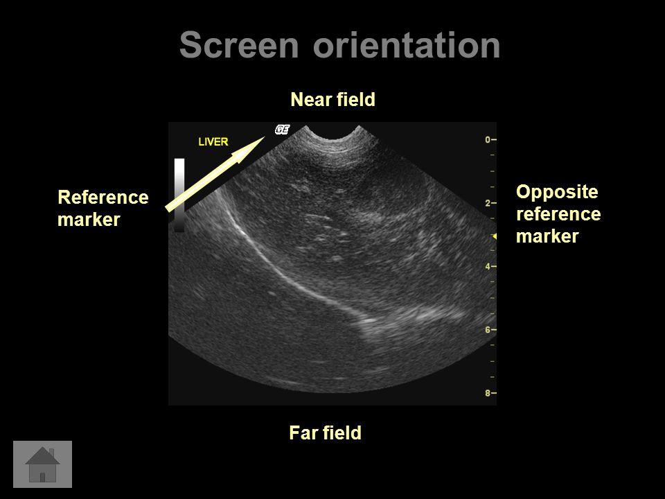 Reference marker Near field Far field Opposite reference marker Screen orientation