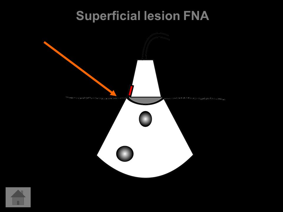 Superficial lesion FNA