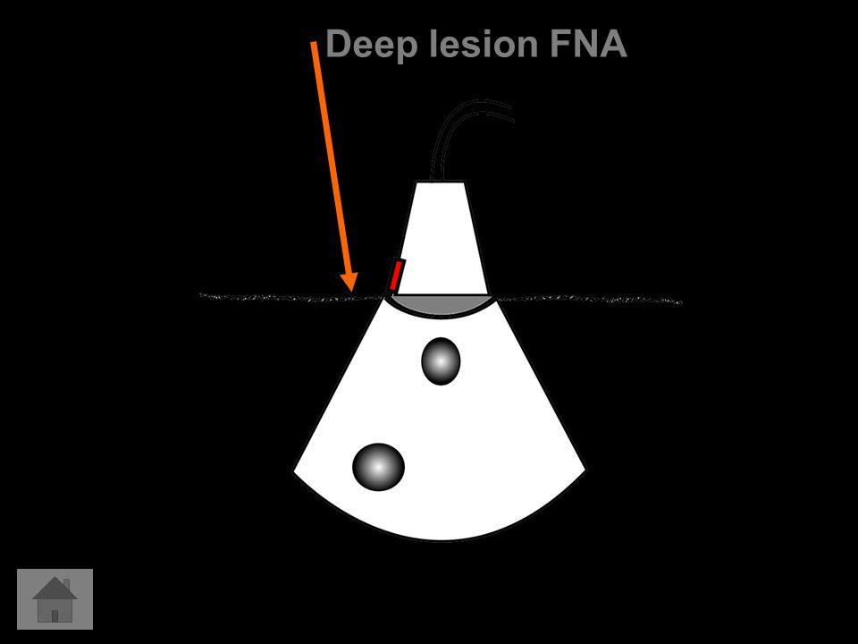 Deep lesion FNA