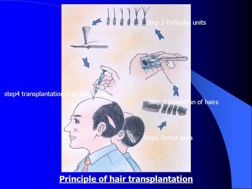 Principle of hair transplantation Step1 Donor area Step 2 dissection of hairs Step 3 Follicular units step4 transplantation in to bald area