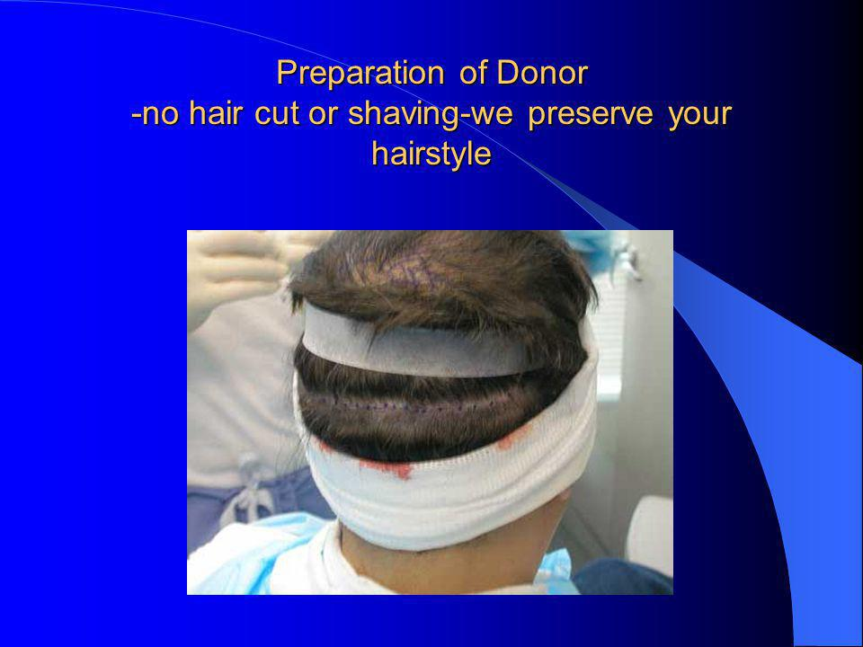 Preparation of Donor -no hair cut or shaving-we preserve your hairstyle