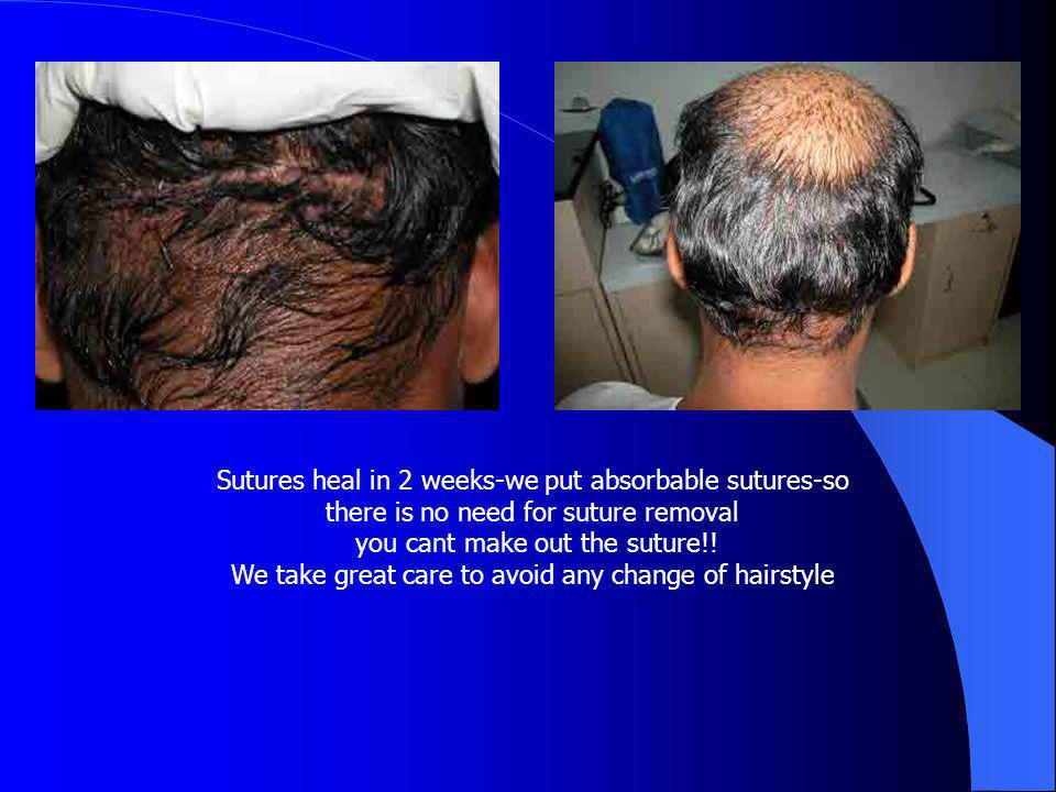 Sutures heal in 2 weeks-we put absorbable sutures-so there is no need for suture removal you cant make out the suture!.