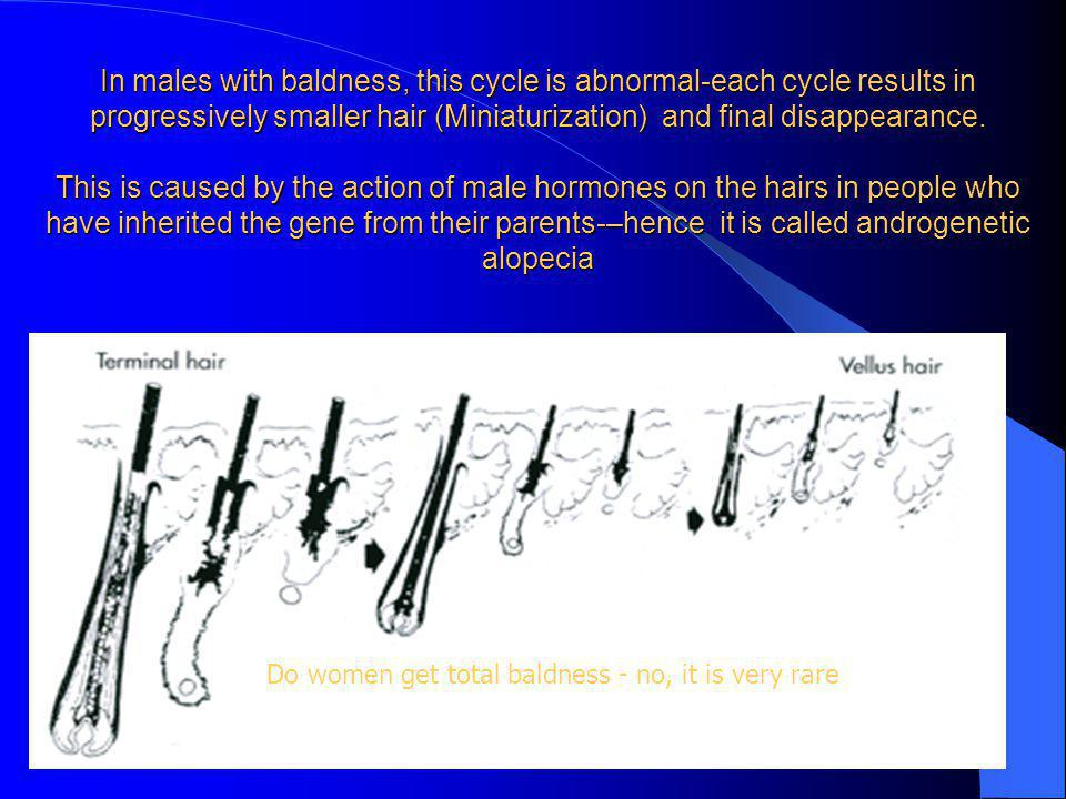 In males with baldness, this cycle is abnormal-each cycle results in progressively smaller hair (Miniaturization) and final disappearance.