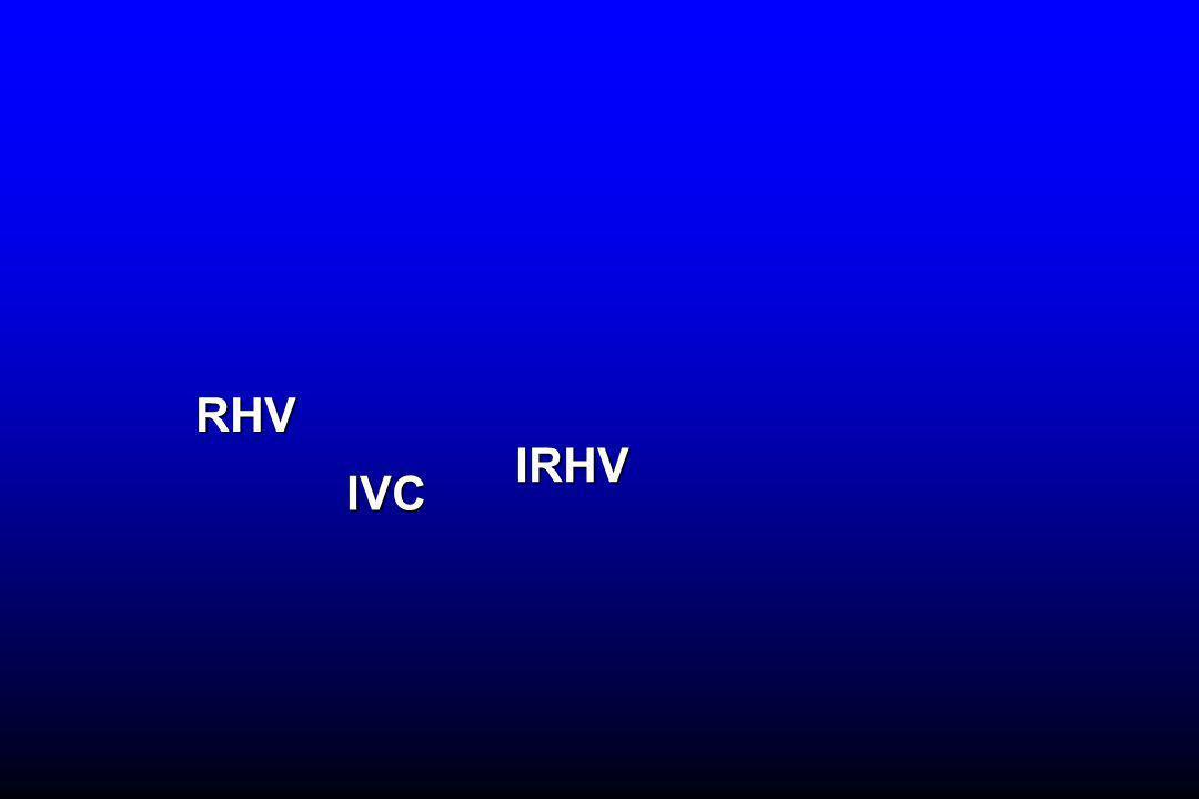 IVC IRHV RHV