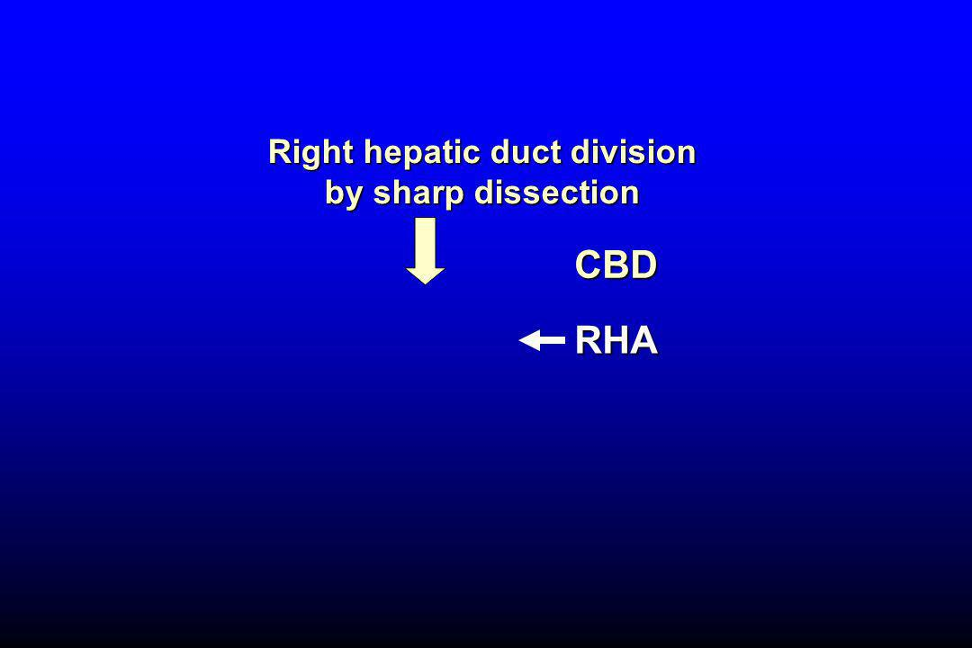 Right hepatic duct division by sharp dissection RHA CBD
