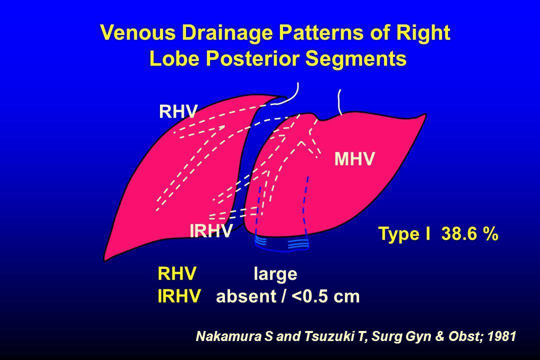 Nakamura S and Tsuzuki T, Surg Gyn & Obst; 1981 Venous Drainage Patterns of Right Lobe Posterior Segments Type I 38.6 % RHVlarge IRHV absent / <0.5 cm RHV IRHV MHV