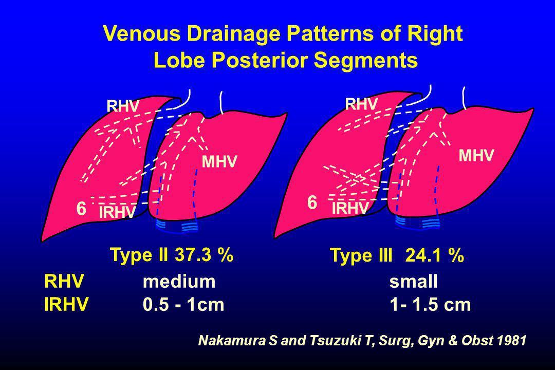 Nakamura S and Tsuzuki T, Surg, Gyn & Obst 1981 Venous Drainage Patterns of Right Lobe Posterior Segments RHVmediumsmall IRHV 0.5 - 1cm1- 1.5 cm Type III 24.1 % RHV IRHV MHV RHV IRHV MHV Type II 37.3 % 6 6