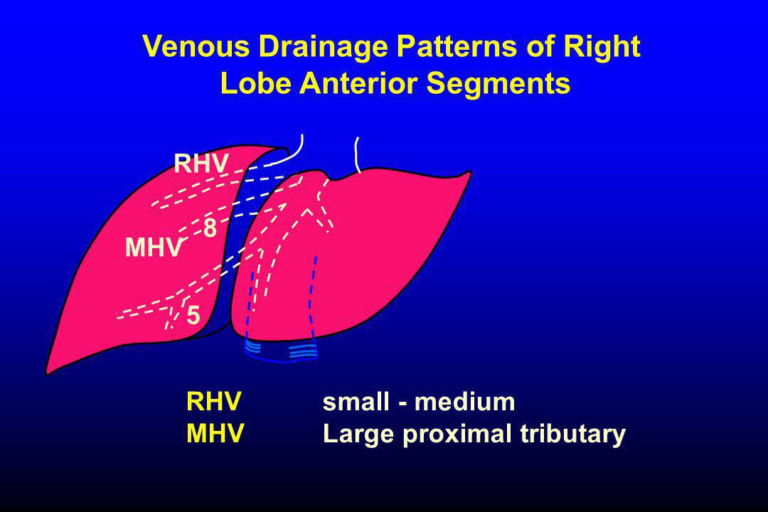Venous Drainage Patterns of Right Lobe Anterior Segments RHV MHV RHVsmall - medium MHV Large proximal tributary 5 8