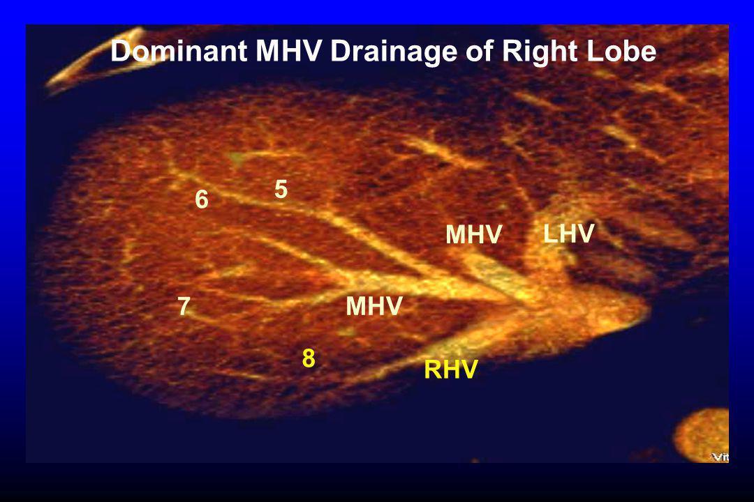 5 6 7 MHV Dominant MHV Drainage of Right Lobe LHV RHV 8 MHV