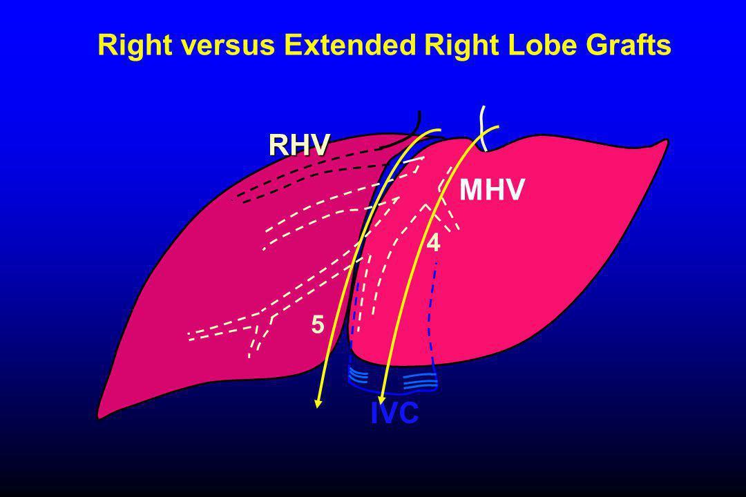 Right versus Extended Right Lobe Grafts RHV MHV 5 IVC 4