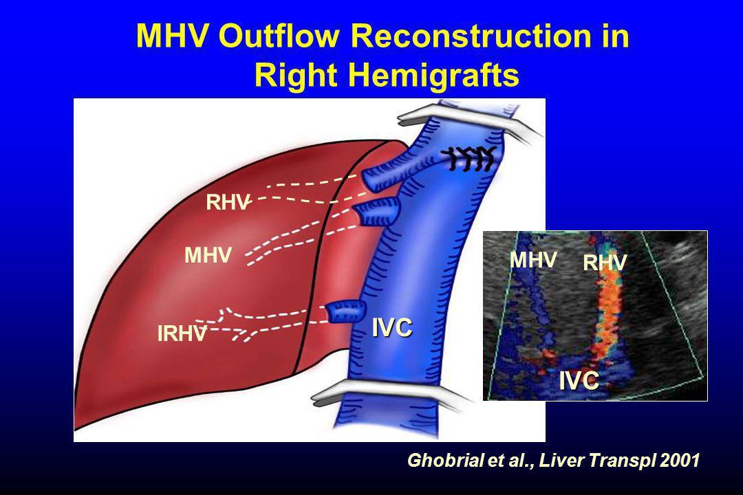 MHV Outflow Reconstruction in Right Hemigrafts MHV RHV IRHV Ghobrial et al., Liver Transpl 2001 IVC IVC RHV MHV