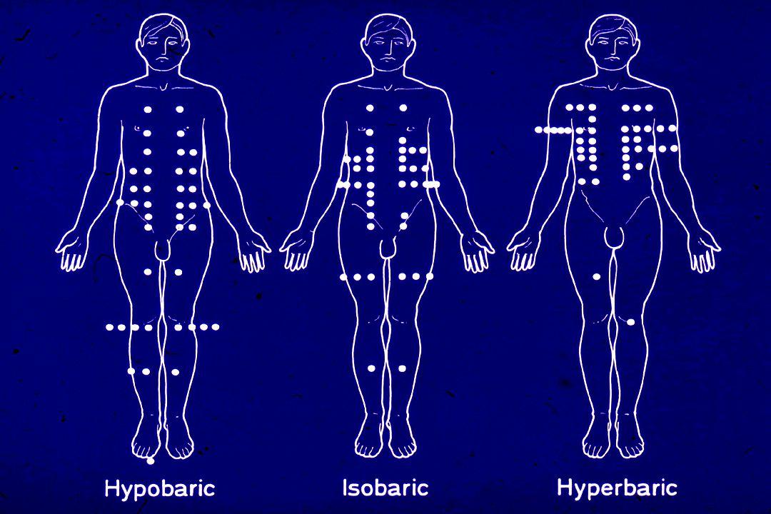 Hyperbaric Isobaric Hypobaric