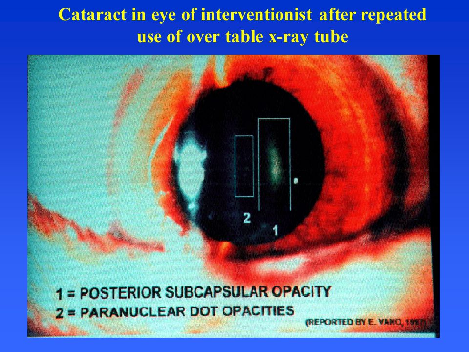 Cataract in eye of interventionist after repeated use of over table x-ray tube