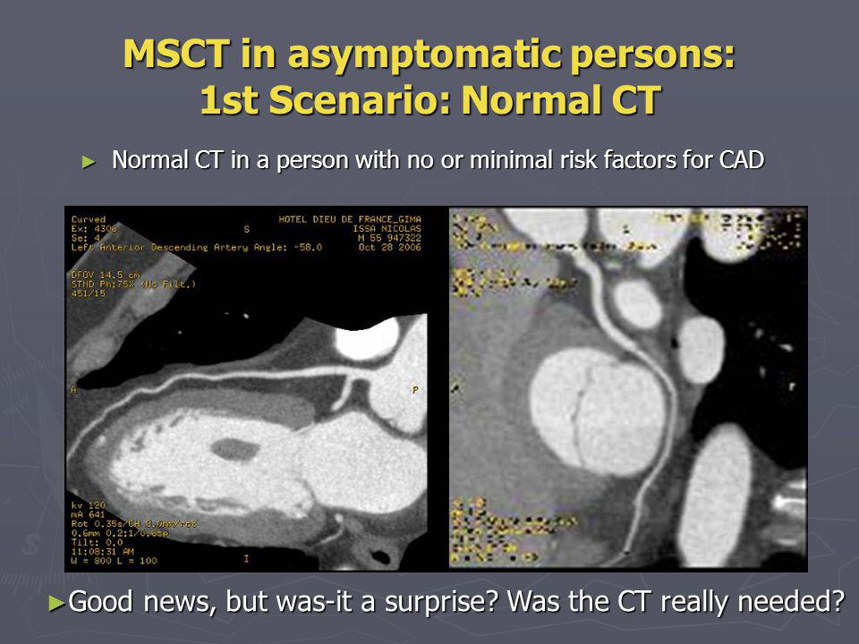 MSCT in asymptomatic persons: 2nd Scenario: Plaque or mild to moderate stenosis This patient has risk factors, he is asymptomatic, but CT shows ~ 50% stenosis on LAD and RCA.