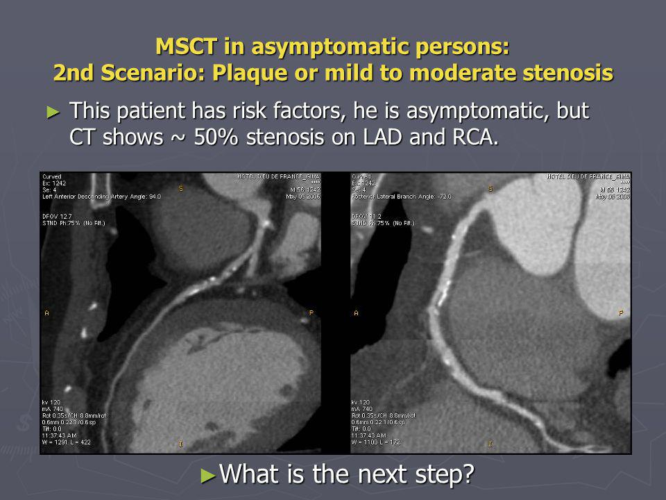 MSCT in asymptomatic persons: 2nd Scenario: Plaque or mild to moderate stenosis This patient has risk factors, he is asymptomatic, but CT shows ~ 50%