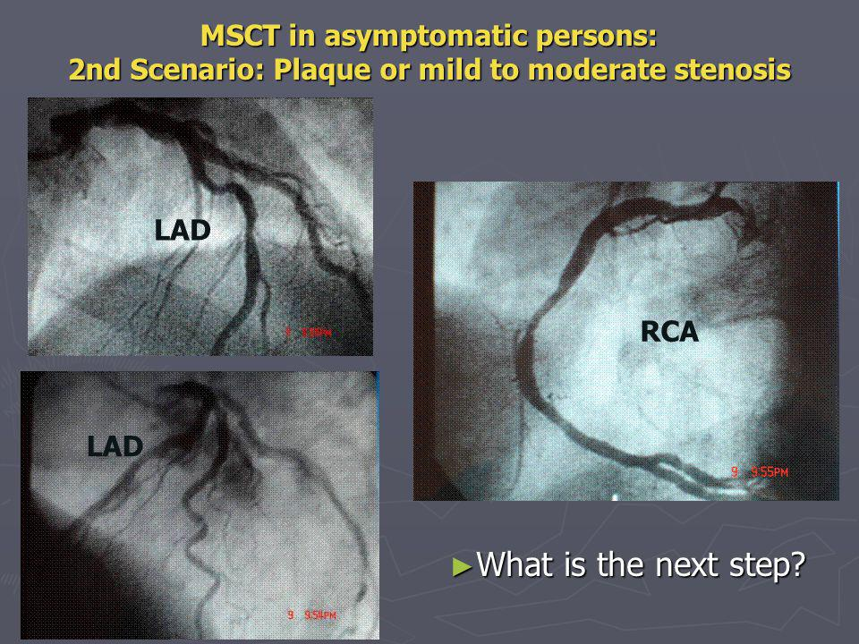 Limitations Need to have a relatively slow, regular rythm Need to have a relatively slow, regular rythm Check renal function before injecting Iodine Check renal function before injecting Iodine Problem raised by calcifications Problem raised by calcifications There is still some difficulty identifying stenosis in peripheral segments There is still some difficulty identifying stenosis in peripheral segments Issues raised by high level of radiation Issues raised by high level of radiation