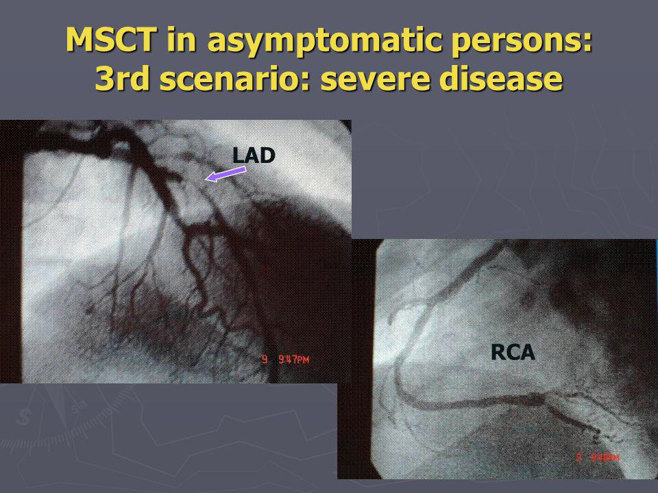 MSCT in asymptomatic persons: 3rd scenario: severe disease Couldnt we identify this patient by non invasive testing: Stress test with or without nuclear imaging or echo.