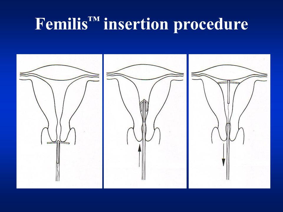 Femilis insertion procedure