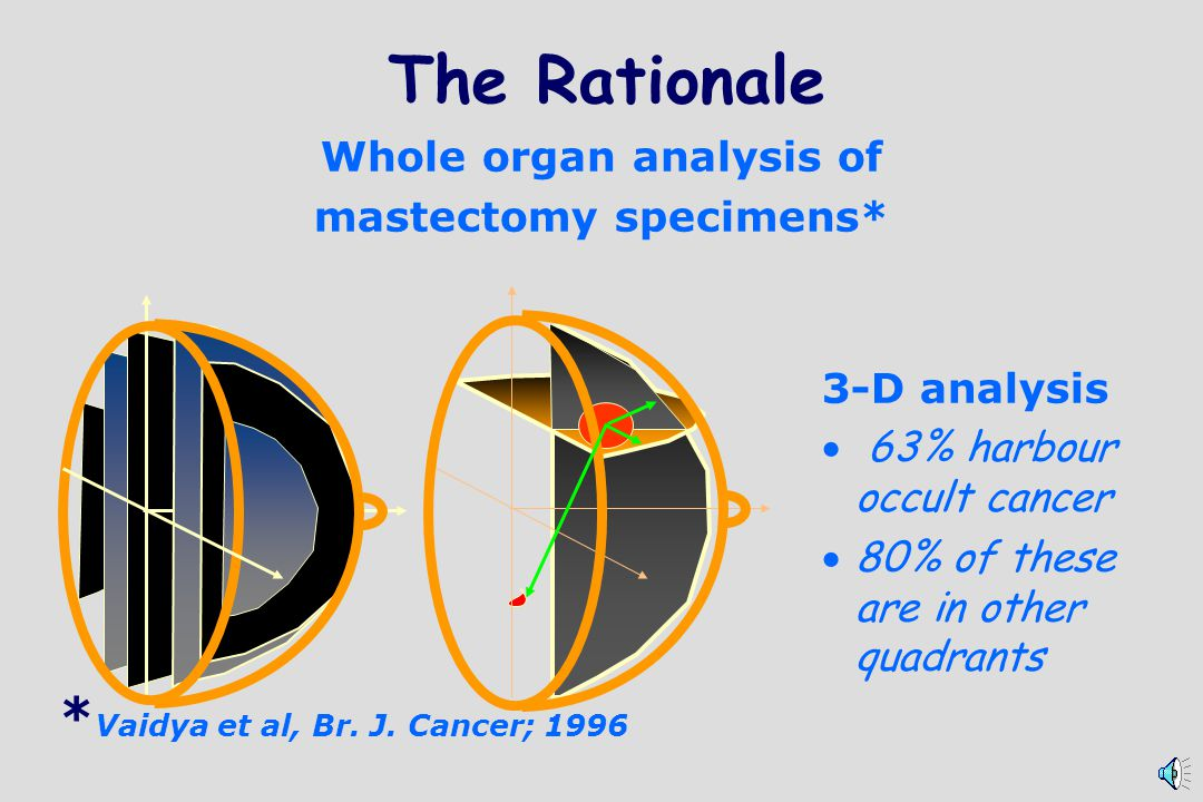 The Rationale Whole organ analysis of mastectomy specimens* 3-D analysis 63% harbour occult cancer 80% of these are in other quadrants * Vaidya et al, Br.