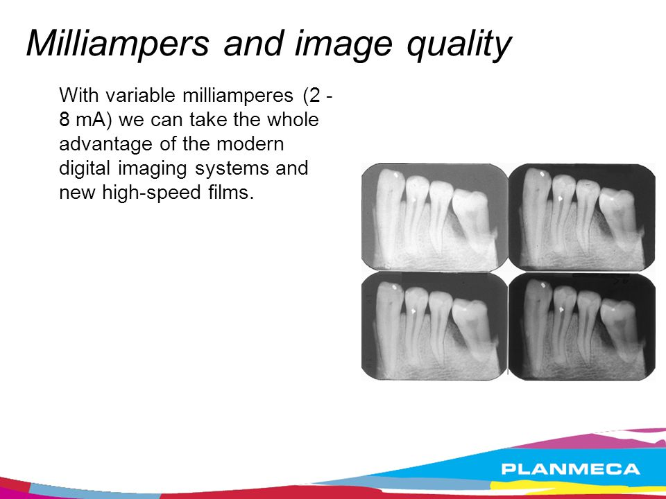 Milliampers and image quality With variable milliamperes (2 - 8 mA) we can take the whole advantage of the modern digital imaging systems and new high