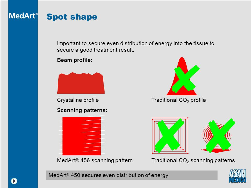 Spot shape MedArt ® 450 secures even distribution of energy Important to secure even distribution of energy into the tissue to secure a good treatment result.