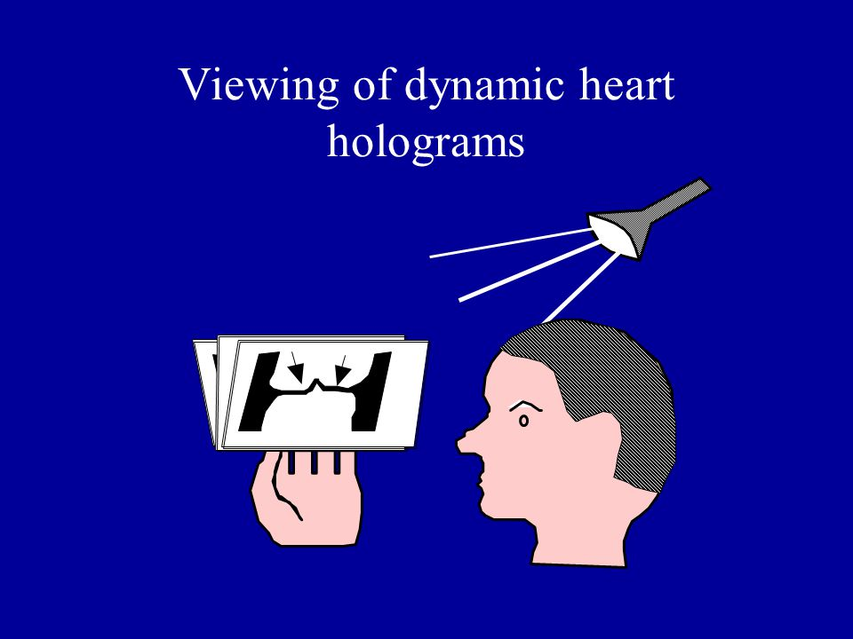 Viewing of dynamic heart holograms