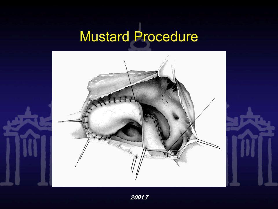 2001.7 Mustard Procedure