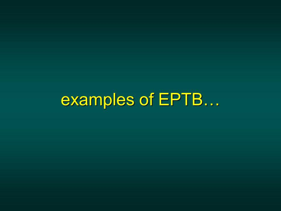 examples of EPTB… examples of EPTB…