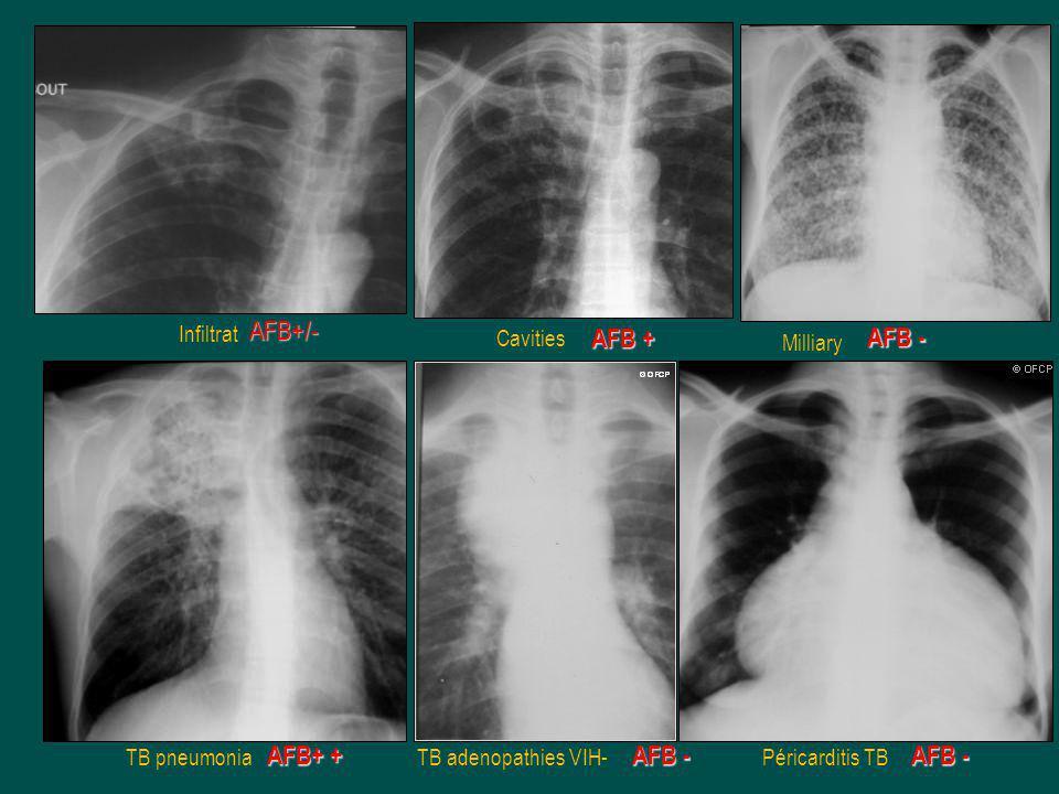 Infiltrat Cavities Milliary TB pneumoniaTB adenopathies VIH-Péricarditis TB AFB+ + AFB + AFB+/- AFB -
