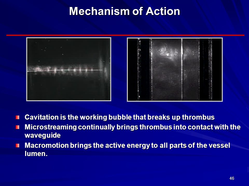 46 Mechanism of Action Cavitation is the working bubble that breaks up thrombus Microstreaming continually brings thrombus into contact with the waveg