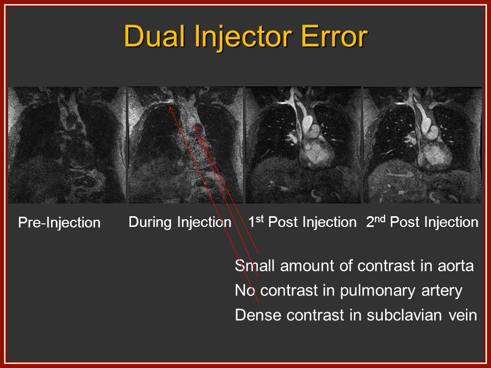 Dual Injector Error Pre-Injection During Injection1 st Post Injection2 nd Post Injection Small amount of contrast in aorta No contrast in pulmonary ar