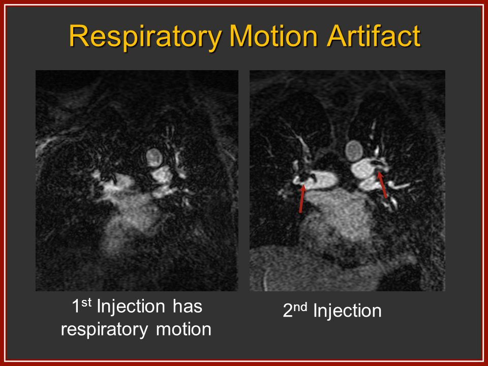1 st Injection has respiratory motion 2 nd Injection Respiratory Motion Artifact