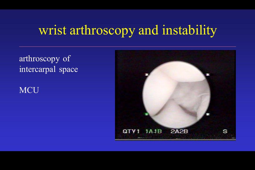 wrist arthroscopy and instability arthroscopy of intercarpal space MCU