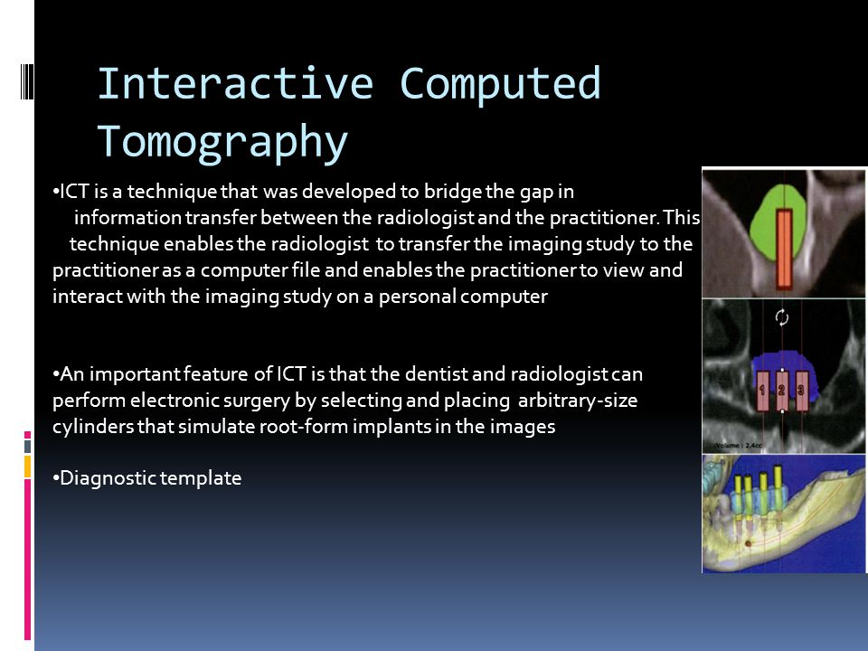 Interactive Computed Tomography ICT is a technique that was developed to bridge the gap in information transfer between the radiologist and the practi