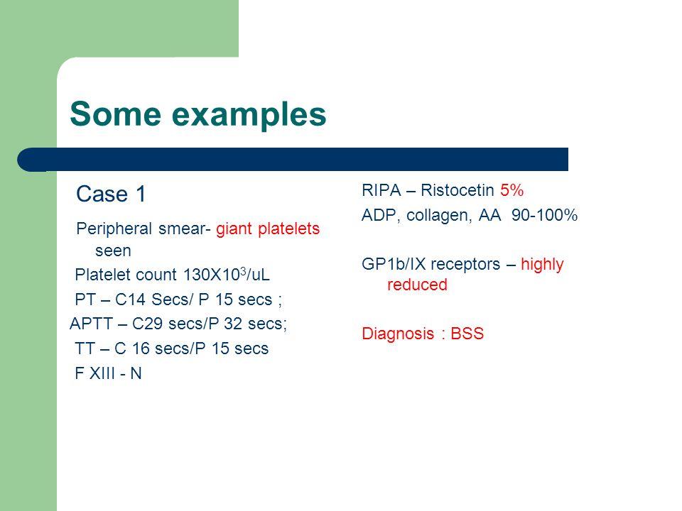 Some examples Case 1 Peripheral smear- giant platelets seen Platelet count 130X10 3 /uL PT – C14 Secs/ P 15 secs ; APTT – C29 secs/P 32 secs; TT – C 1
