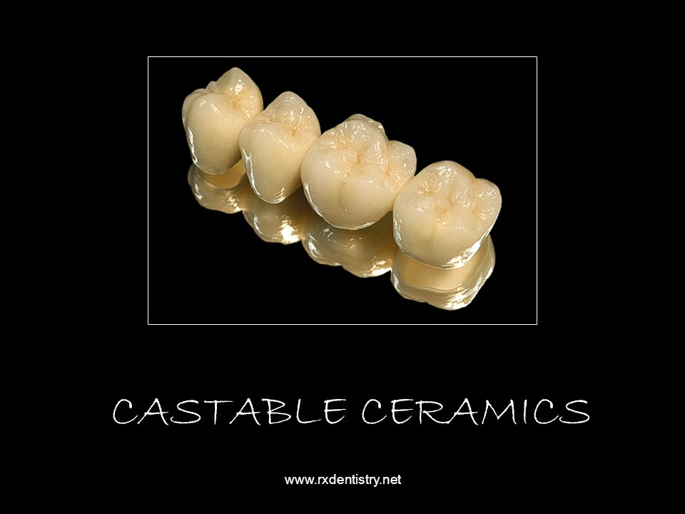 CASTABLE CERAMICS www.rxdentistry.net