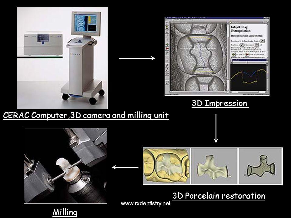 CERAC Computer,3D camera and milling unit 3D Impression 3D Porcelain restoration Milling www.rxdentistry.net