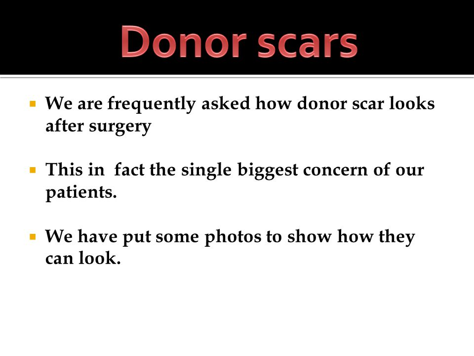 We are frequently asked how donor scar looks after surgery This in fact the single biggest concern of our patients. We have put some photos to show ho
