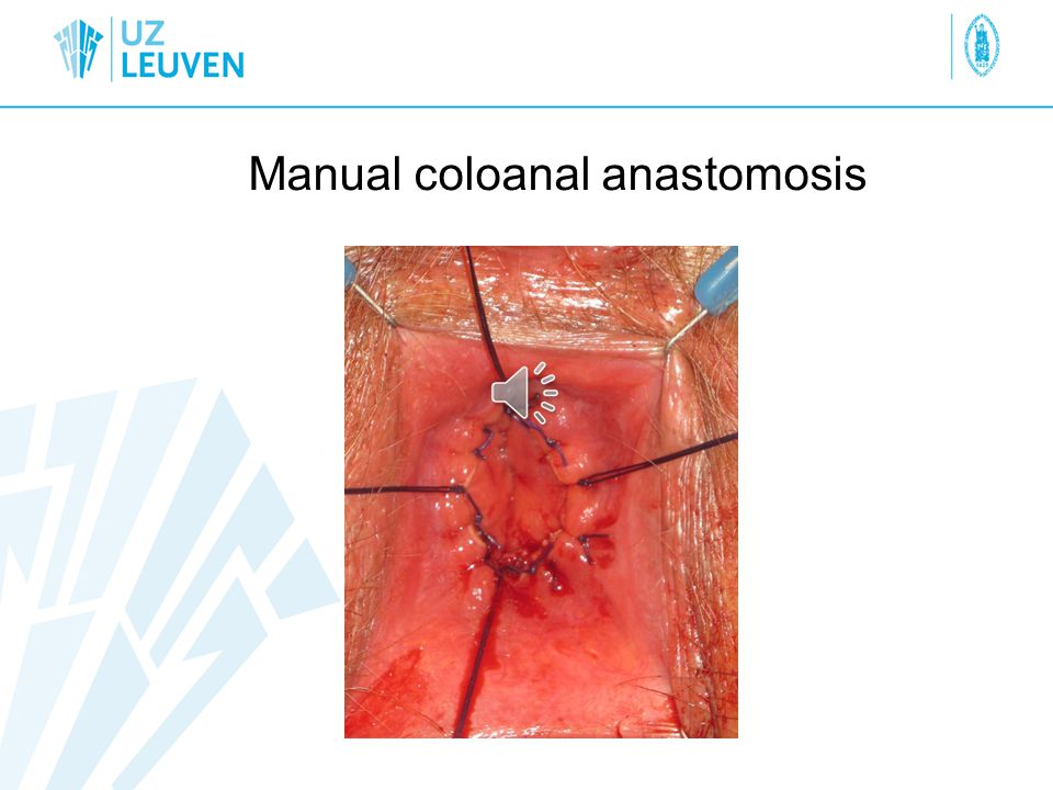 Manual coloanal anastomosis