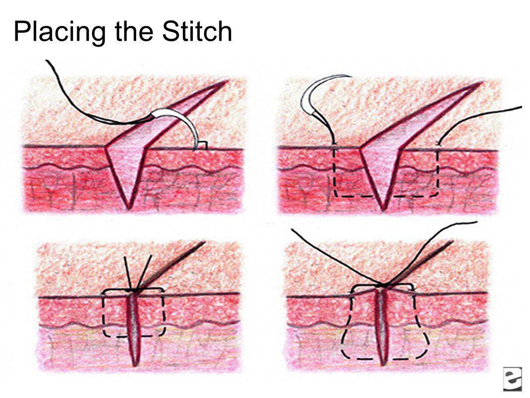 Placing the Stitch