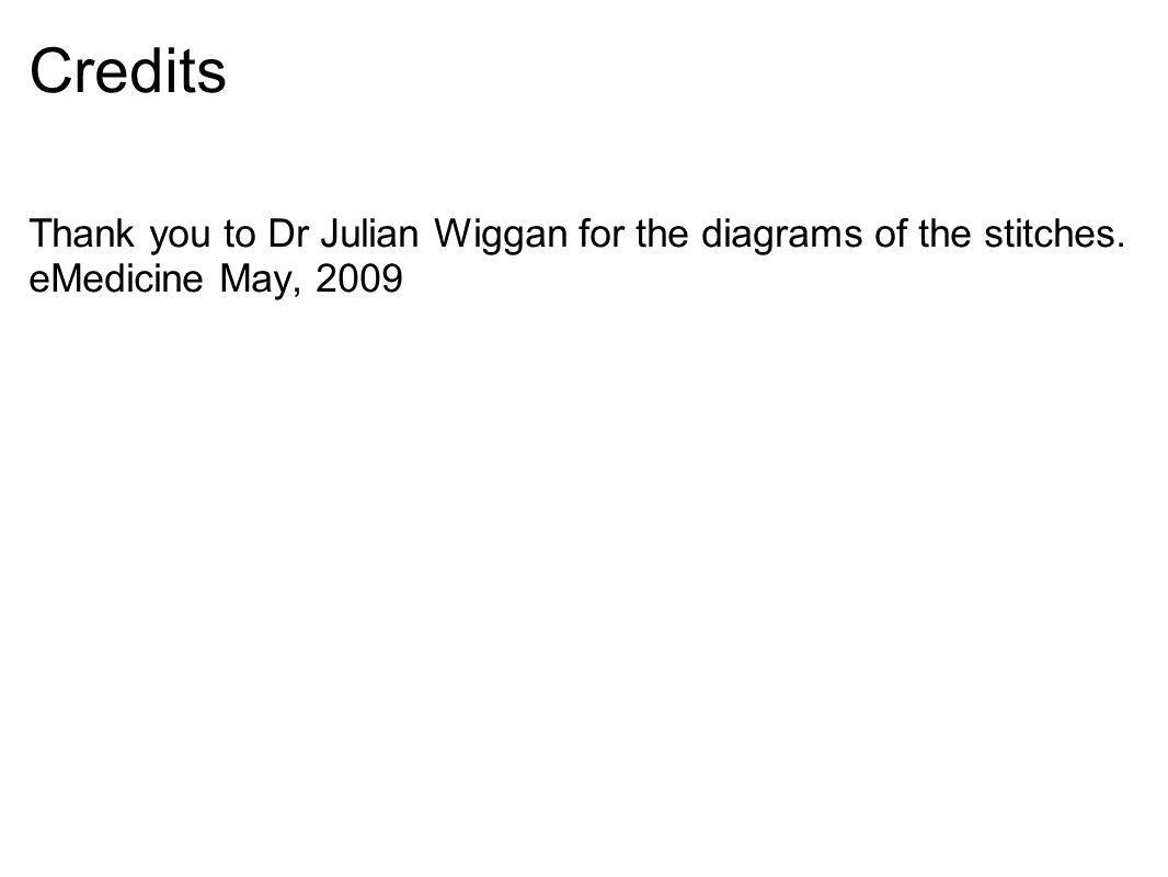 Credits Thank you to Dr Julian Wiggan for the diagrams of the stitches. eMedicine May, 2009