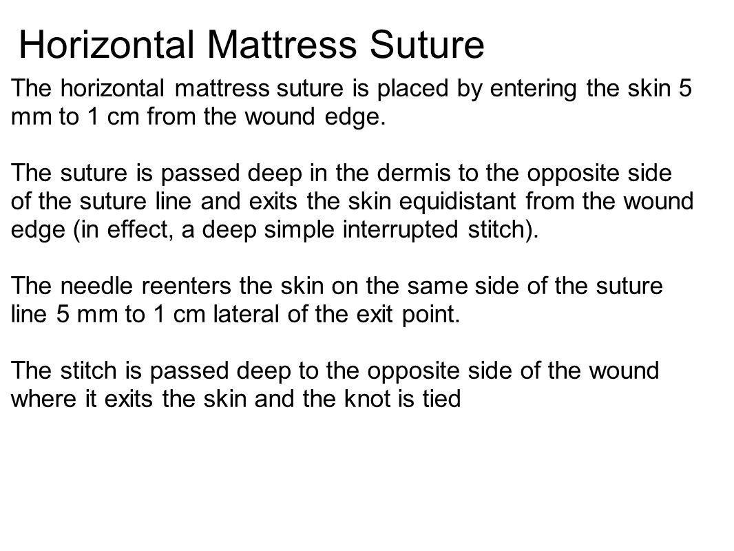 Horizontal Mattress Suture The horizontal mattress suture is placed by entering the skin 5 mm to 1 cm from the wound edge. The suture is passed deep i