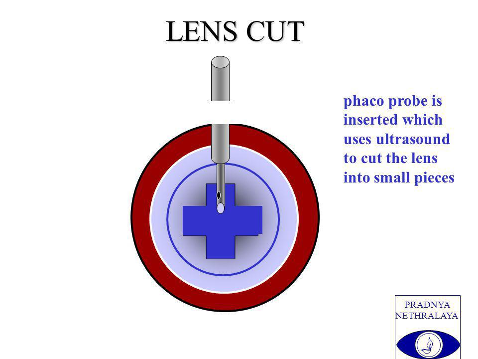 PRADNYA NETHRALAYA LENS CUT phaco probe is inserted which uses ultrasound to cut the lens into small pieces
